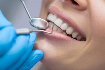 Inst. Catalá Dental Dtto Ensanche: Boca sana con revisión, raspado y alisado radicular por cuadrante