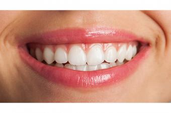 Vidaluc Salud: 1, 2 o 3 sesiones de blanqueamiento dental para lucir una sonrisa de cine