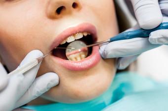 Bonos de 1 o 3 sesiones de limpieza dental para cuidar su salud bucal