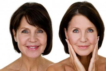 American Secrets: Opte por 3 o 6 sesiones de tratamiento rejuvenecedor y luzca radiante
