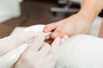Vidaluc Salud: Bonos de 1, 2 o 3 sesiones para eliminar los hongos de sus pies